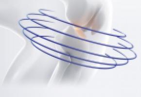 Si elle peut toucher n'importe quelle articulation, l'arthrose sévit le plus souvent dans les genoux DR